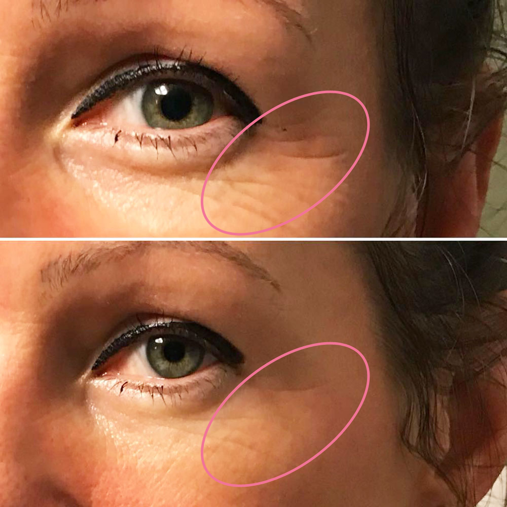 emmiSKIN, results, consultants, customers, skincare, crows feet, eye wrinkles