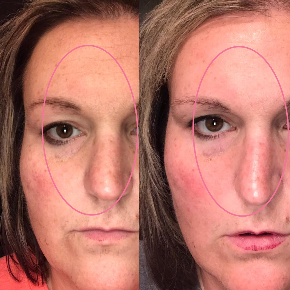 emmiSKIN, results, consultants, customers, skincare, forehead lines, wrinkles, dull skin