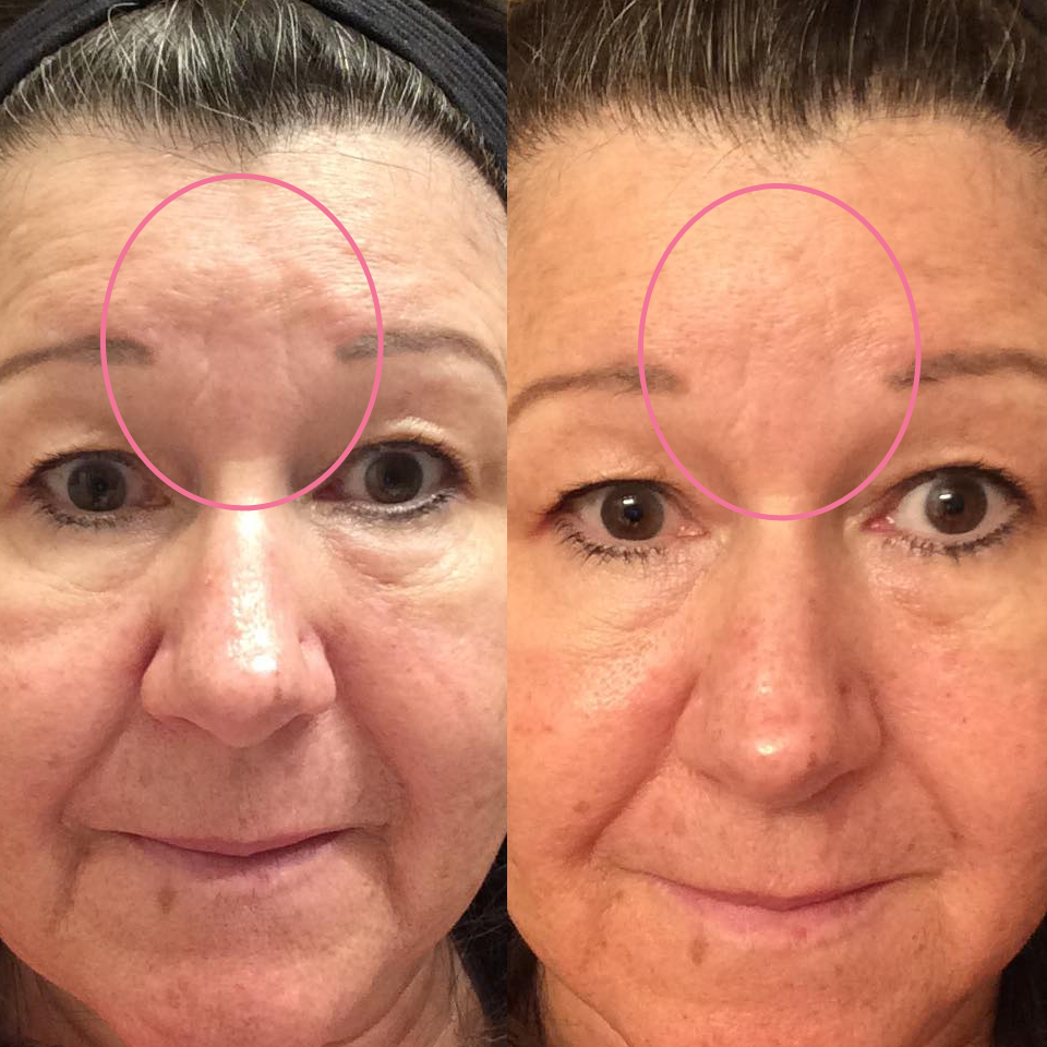 emmiSKIN, results, consultants, customers, skincare, forehead wrinkles, lines, expression lines