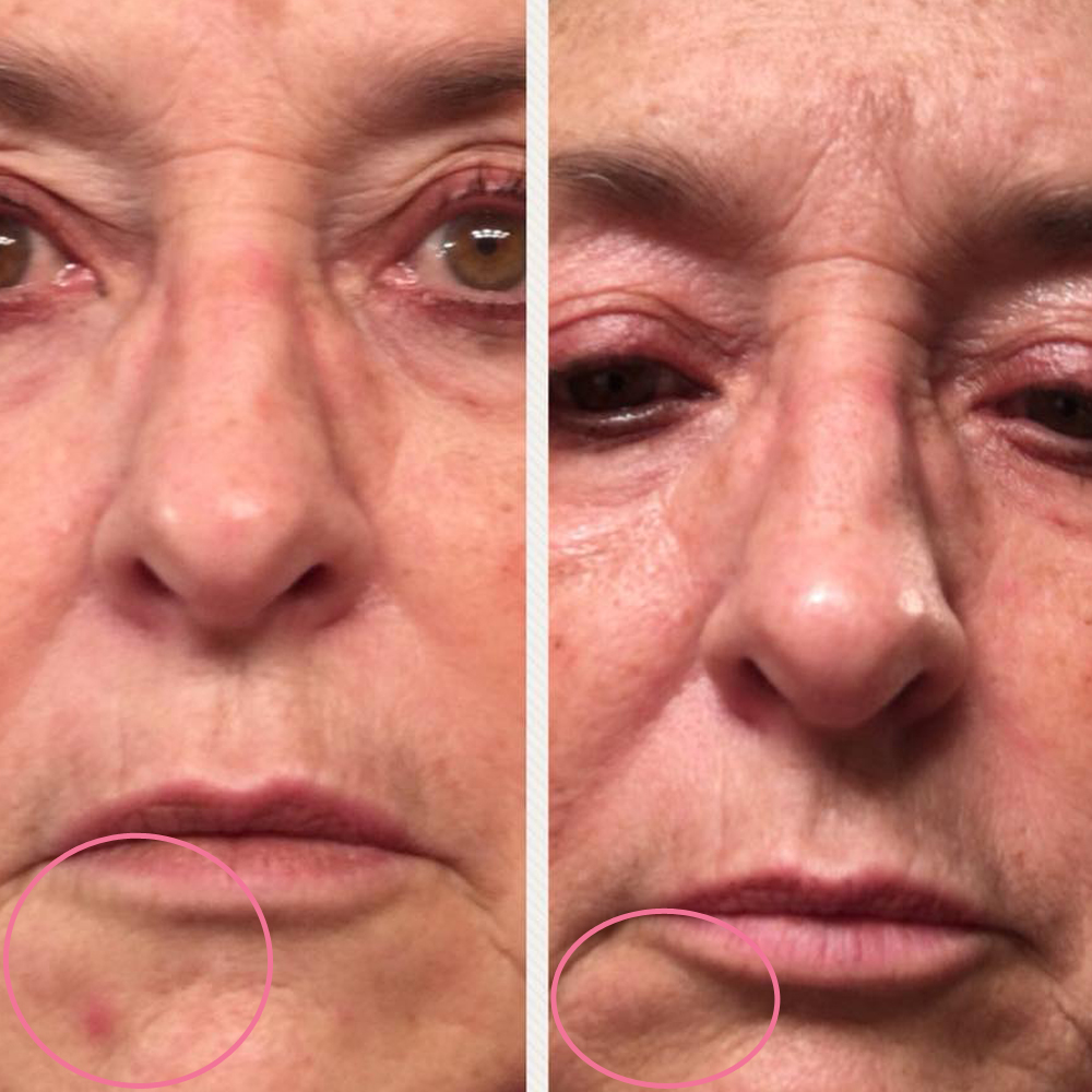 emmiSKIN, results, consultants, customers, skincare, eye wrinkles, mouth lines
