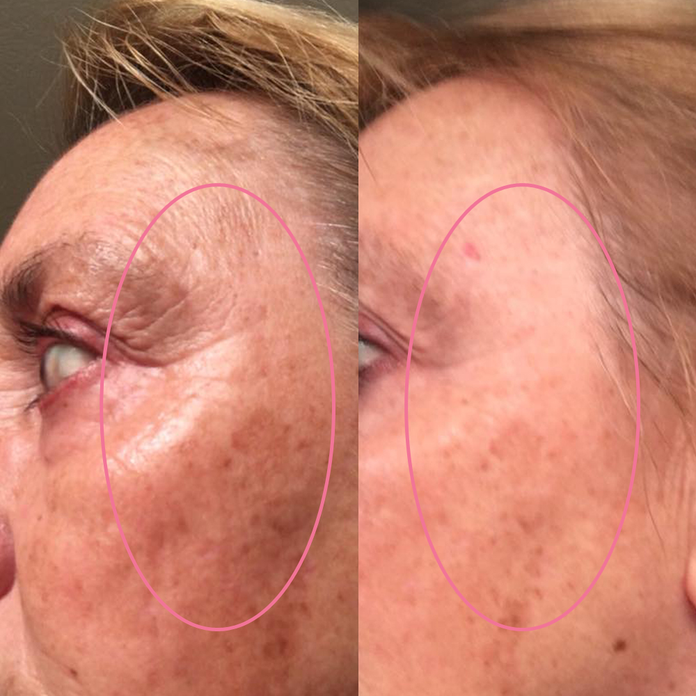 emmiSKIN, results, consultants, customers, skincare, crows feet, facial lines, wrinkles
