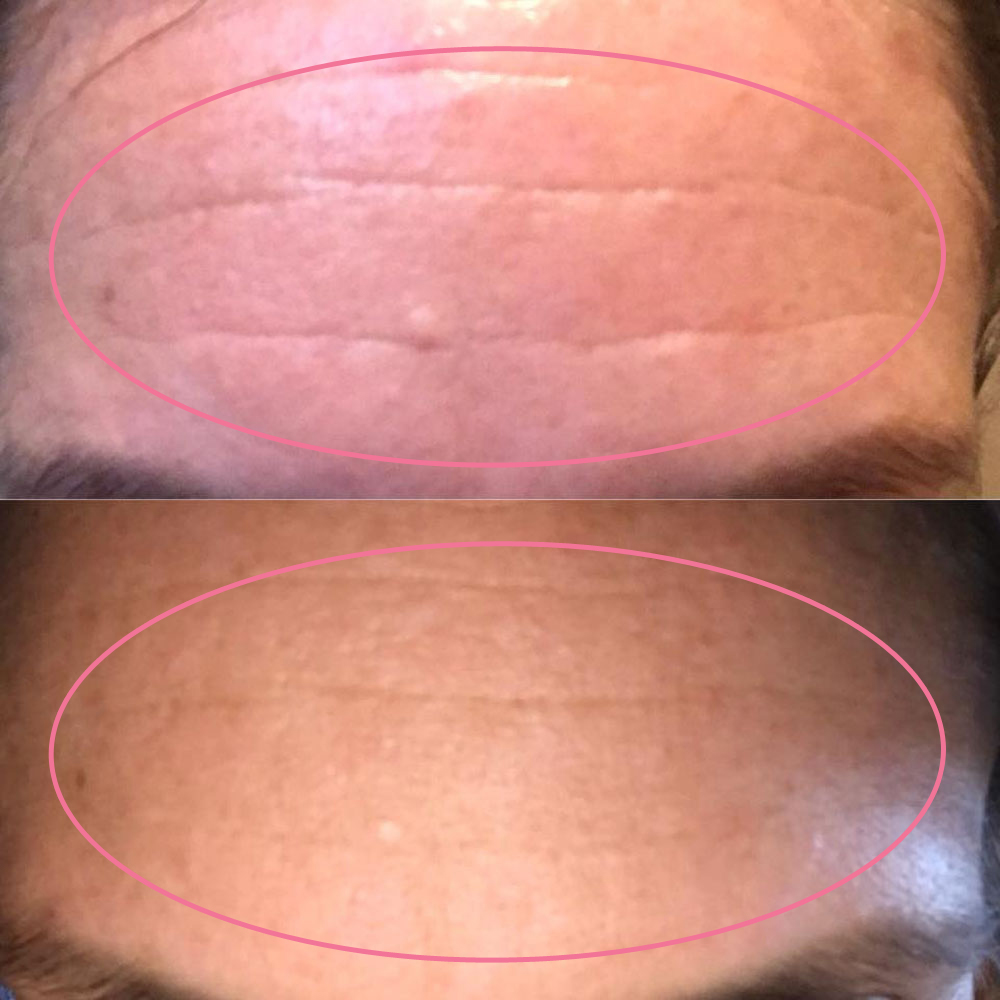 emmiSKIN, results, consultants, customers, skincare, forehead lines, wrinkles