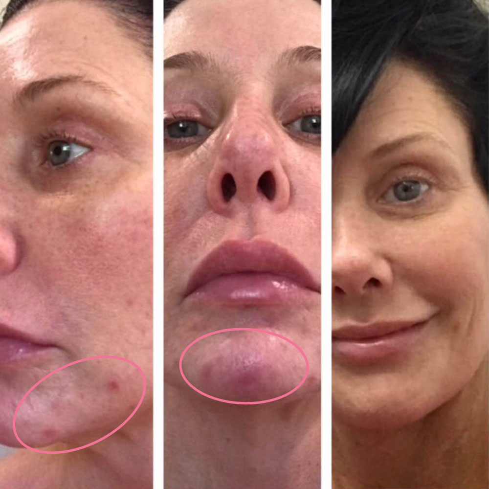 emmiSKIN, results, consultants, customers, skincare, aging, wrinkles, facial lines