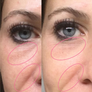 emmiSKIN, results, consultants, customers, skincare, bags under eyes