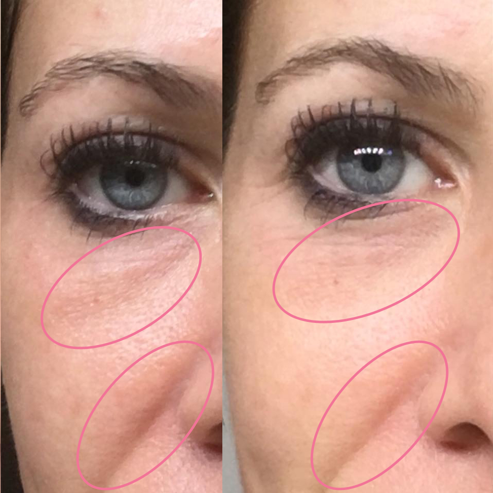 emmiSKIN, results, consultants, customers, skincare, wrinkles, bags under eyes